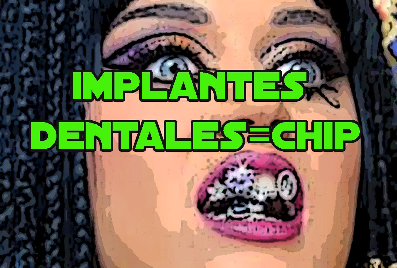 implantesdentales